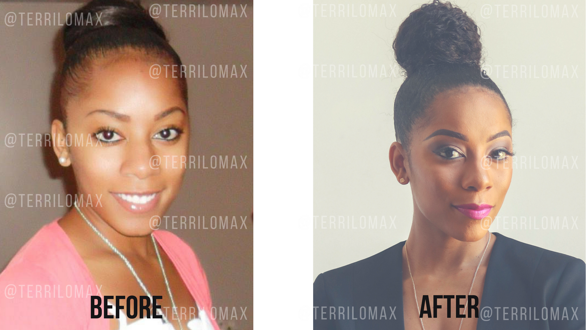 How A Hair Transplant Can Reverse Traction Alopecia And Thinning Edges